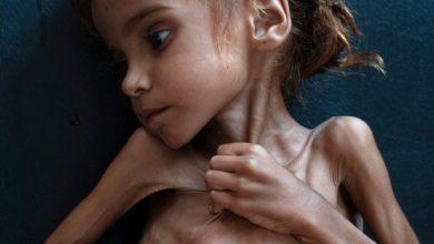 Photo of Amal Hussain, Yemeni girl who turned world's eyes to famine, has died