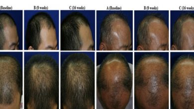 Photo of Stem cell topical solution for baldness offers positive trial results