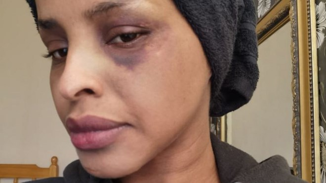 Photo of Racist attack investigation reopened by Met Police